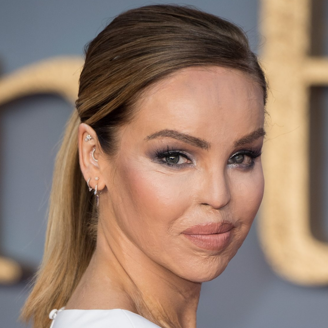 Katie Piper Shares Visible Hate Video